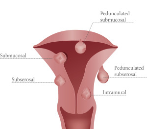 uterine-fibroid-los-angeles
